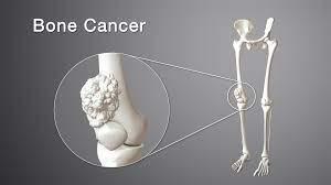 जानिए हड्डी के कैंसर के जोखिम और उपचार के बारे में