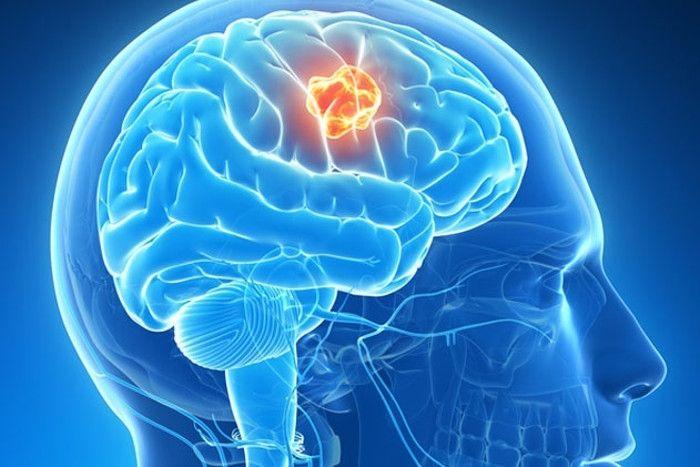 ब्रेन ट्यूमर कारण, लक्षण और उपचार के विकल्प