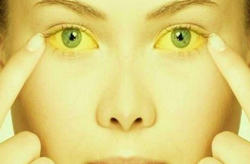 जानिए पीलिया के कारण,लक्षण और ईलाज